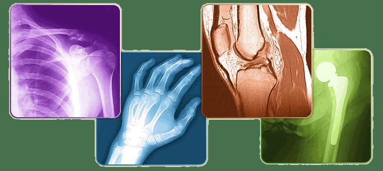Начало | ✅ Д-р Стоян Арнаудов - Ортопед | Травматолог ⭐️