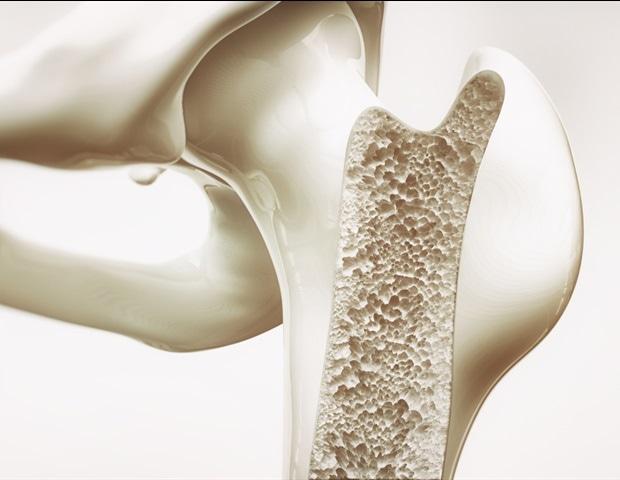 Аномалии в костната микроархитектура, свързани с риск от усложнения след операция на гръбначен синтез | ✅ Д-р Стоян Арнаудов - Ортопед | Травматолог ⭐️