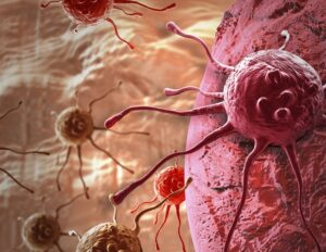 По-гладките силиконови импланти за гърди могат да намалят възпалението и други реакции на имунната система | ✅ Д-р Стоян Арнаудов - Ортопед | Травматолог ⭐️