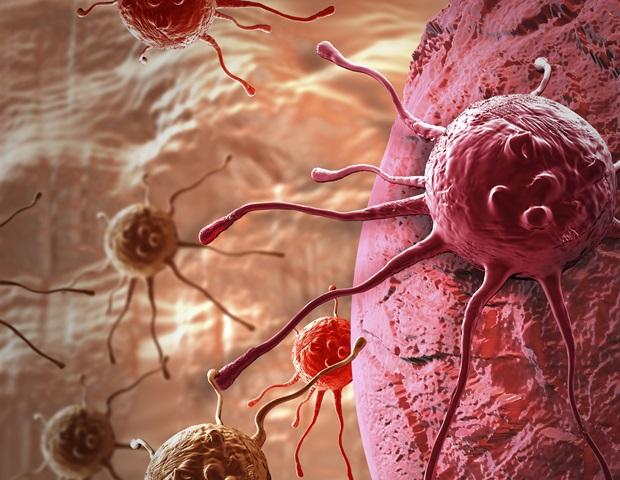 Пациентите с рак имат по-висок риск от тежка инфекция с Коронавирус | ✅ Д-р Стоян Арнаудов - Ортопед | Травматолог ⭐️
