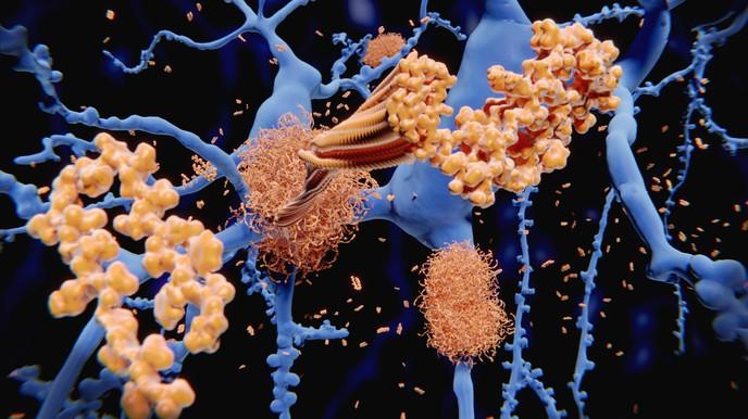 Златните наночастици помагат да се разкрие фина структура на амилоидните фибрили | ✅ Д-р Стоян Арнаудов - Ортопед | Травматолог ⭐️