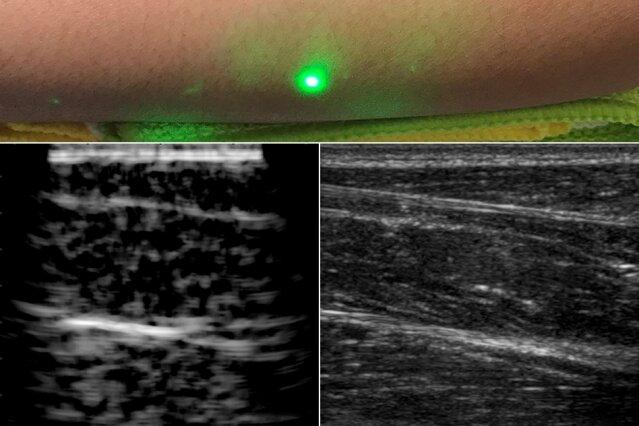 Лазерна ултразвукова система изобразява вътрешността на хората от разстояние | ✅ Д-р Стоян Арнаудов - Ортопед | Травматолог ⭐️
