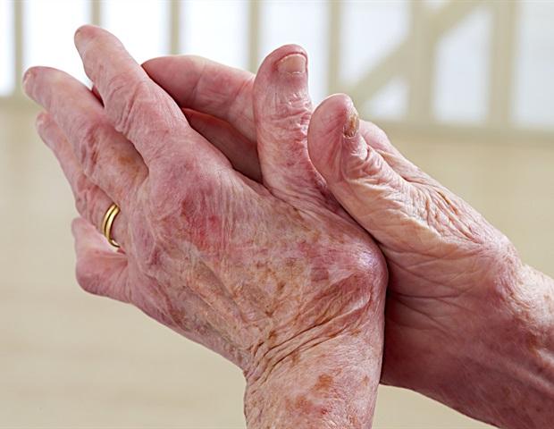 Лекарствата за имунотерапия предизвикват възпалителен артрит при подгрупа пациенти с рак | ✅ Д-р Стоян Арнаудов - Ортопед | Травматолог ⭐️