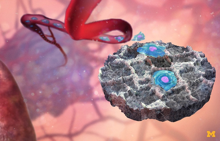 Малко имплантируемо устройство може да привлече раковите клетки към себе си за анализ на генната експресия. | ✅ Д-р Стоян Арнаудов - Ортопед | Травматолог ⭐️