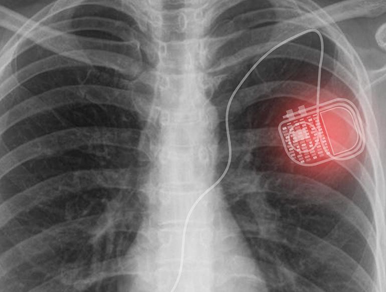 Микро-светодиоди и слънчеви панели безжично захранват медицински импланти | ✅ Д-р Стоян Арнаудов - Ортопед | Травматолог ⭐️