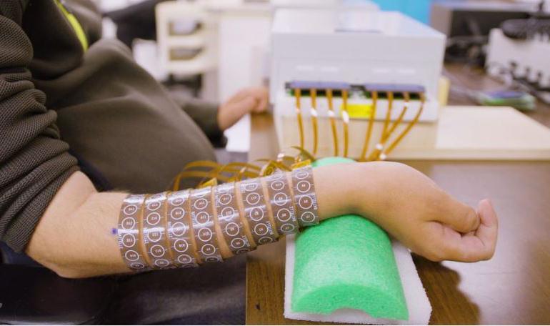 Мозъчно-компютърният интерфейс позволява на човек с пълна травма на гръбначния мозък да усети и да движи ръката си | ✅ Д-р Стоян Арнаудов - Ортопед | Травматолог ⭐️