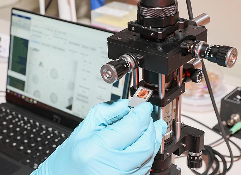 Преносим наноплазмоничен визуализатор открива биомаркери на сепсис | ✅ Д-р Стоян Арнаудов - Ортопед | Травматолог ⭐️