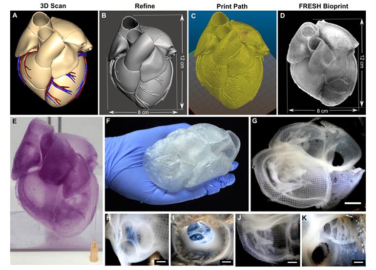Силно реалистични 3D отпечатани човешки сърца   ✅ Д-р Стоян Арнаудов - Ортопед   Травматолог ⭐️