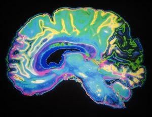 Според изследвания повтарящите се субконкусивни въздействия предизвикват повече промени в жизнените показатели на мозъка | ✅ Д-р Стоян Арнаудов - Ортопед | Травматолог ⭐️