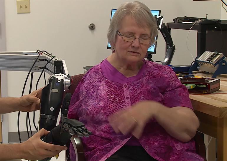 Стимулатори на гръбначния мозък придават на роботизираните протези усещане за допир | ✅ Д-р Стоян Арнаудов - Ортопед | Травматолог ⭐️