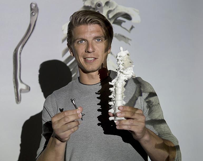 3D отпечатани титанови импланти помагат за тежки гръбначни деформации | ✅ Д-р Стоян Арнаудов - Ортопед | Травматолог ⭐️