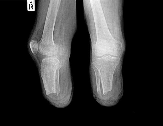 FDA одобрява първата имплантационна система за възрастни, които имат ампутации над коляното | ✅ Д-р Стоян Арнаудов - Ортопед | Травматолог ⭐️