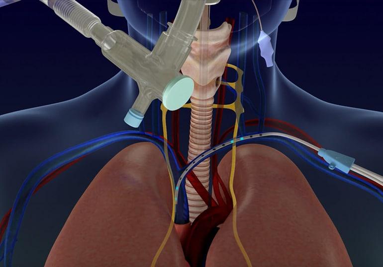 Lungpacer Diaphragm Pacer получава разрешение за спешна употреба от FDA за COVID-19 | ✅ Д-р Стоян Арнаудов - Ортопед | Травматолог ⭐️