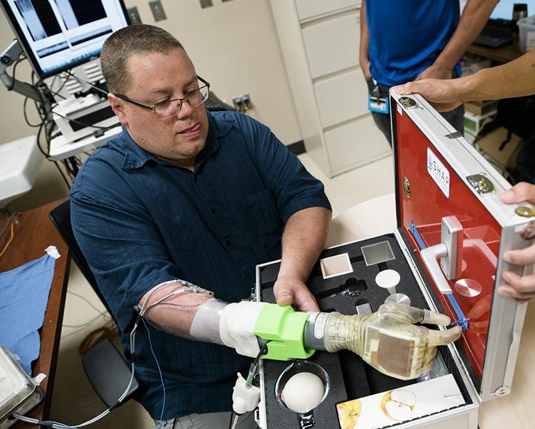 Prosthetic Tech разработи техника за осигуряване на индивидуален контрол на пръстите на протези | ✅ Д-р Стоян Арнаудов - Ортопед | Травматолог ⭐️