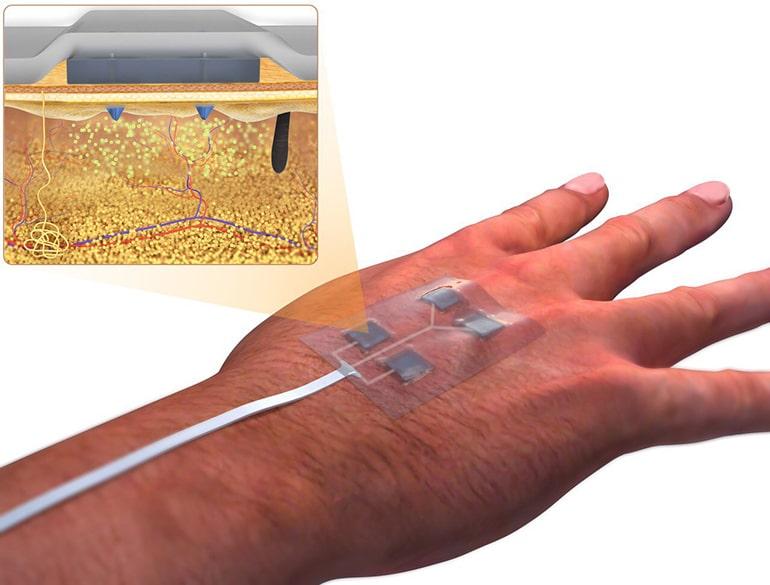 Електронната превръзка доставя лекарства, без да оставя белези | ✅ Д-р Стоян Арнаудов - Ортопед | Травматолог ⭐️