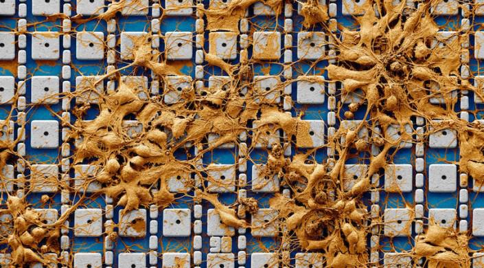 Наноелектроден чип за изследване на активността на невроналната мрежа на хиляди клетки | ✅ Д-р Стоян Арнаудов - Ортопед | Травматолог ⭐️