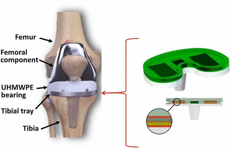 Сензор за колен имплант генерира собствена електроенергия | ✅ Д-р Стоян Арнаудов - Ортопед | Травматолог ⭐️