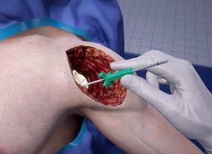 Ексклузивно интервю с Precision OS - компания за ортопедична хирургия чрез виртуална реалност | ✅ Д-р Стоян Арнаудов - Ортопед | Травматолог ⭐️