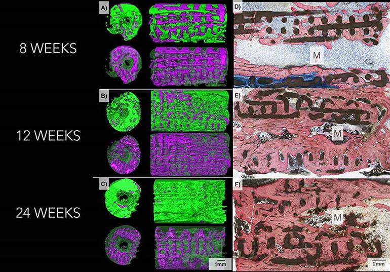 3D отпечатаните керамични импланти помагат за възстановяването на костите | ✅ Д-р Стоян Арнаудов - Ортопед | Травматолог ⭐️