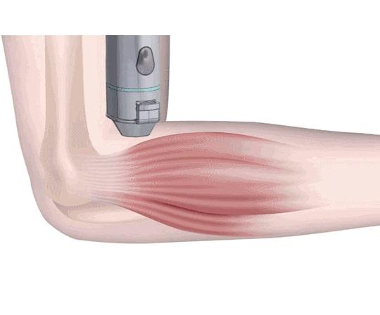 Actisound Intense - терапевтичен ултразвуков апарат е одобрен в Европа | ✅ Д-р Стоян Арнаудов - Ортопед | Травматолог ⭐️