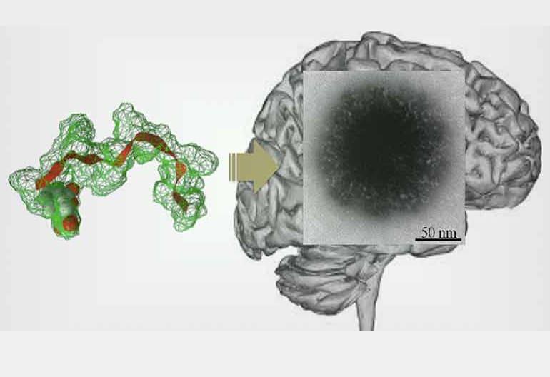 Пептидни частици Фериботни лекарства през кръвно-мозъчната бариера | ✅ Д-р Стоян Арнаудов - Ортопед | Травматолог ⭐️