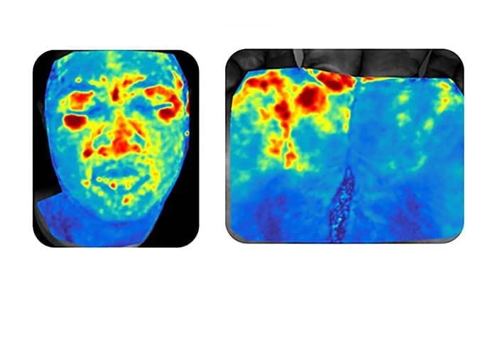 Оптична камера изобразява кръвна перфузия с висока разделителна способност благодарение на пулсоксиметъра | ✅ Д-р Стоян Арнаудов - Ортопед | Травматолог ⭐️