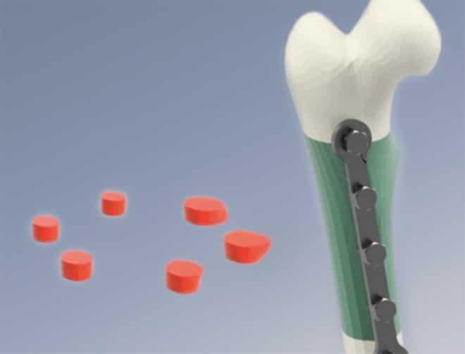 Биоинженерни костни присадки при големи костни дефекти | ✅ Д-р Стоян Арнаудов - Ортопед | Травматолог ⭐️