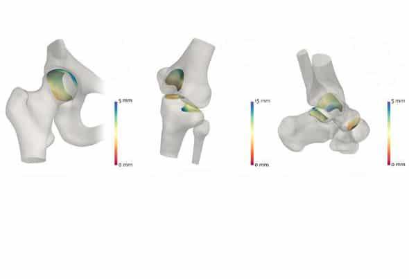 3D картографиране на пространството помага за диагностика на пациентите с артрит | ✅ Д-р Стоян Арнаудов - Ортопед | Травматолог ⭐️