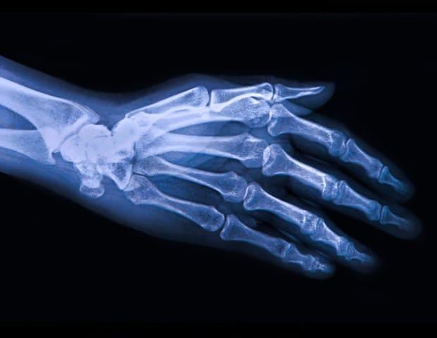 Изследователят от CU получава грант за NIH, за да анализира връзката между чревния микробиом и остеоартрита | ✅ Д-р Стоян Арнаудов - Ортопед | Травматолог ⭐️