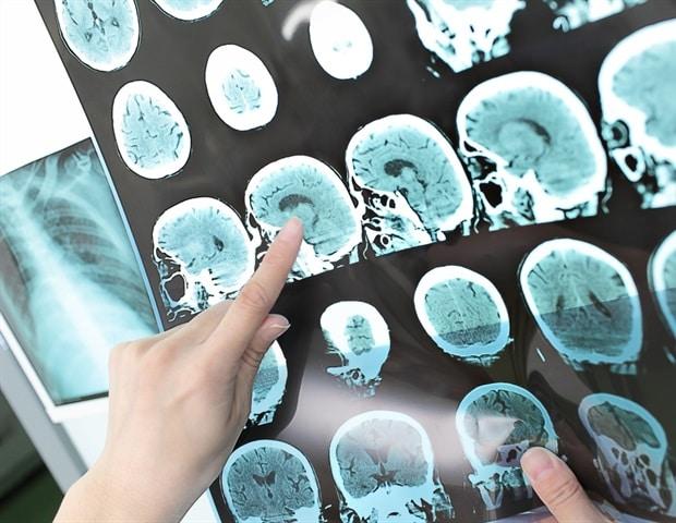 Новият подход към лечението може да промени живота на много пациенти с инсулт | ✅ Д-р Стоян Арнаудов - Ортопед | Травматолог ⭐️