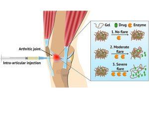 Хидрогел, реагиращ на болести, може да достави лекарства по време на пристъпи на артрит | ✅ Д-р Стоян Арнаудов - Ортопед | Травматолог ⭐️