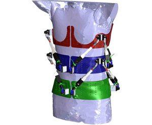 Роботизирана протеза установява гръбначните изкривявания и динамично настройва нужната терапията | ✅ Д-р Стоян Арнаудов - Ортопед | Травматолог ⭐️