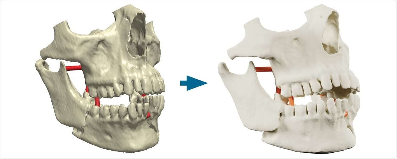 Simpleware ScanIP Medical получи разрешение FDA 510 (k) за 3D медицинска диагностика | ✅ Д-р Стоян Арнаудов - Ортопед | Травматолог ⭐️