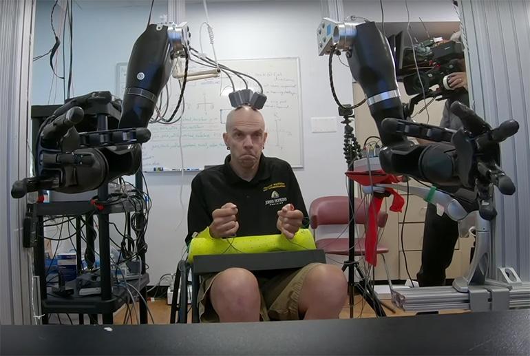 Първо в света: Човек контролира със своя ум двете задвижвани с протези ръце | ✅ Д-р Стоян Арнаудов - Ортопед | Травматолог ⭐️